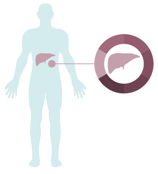 Die Leber - Leben mit Leberkrebs